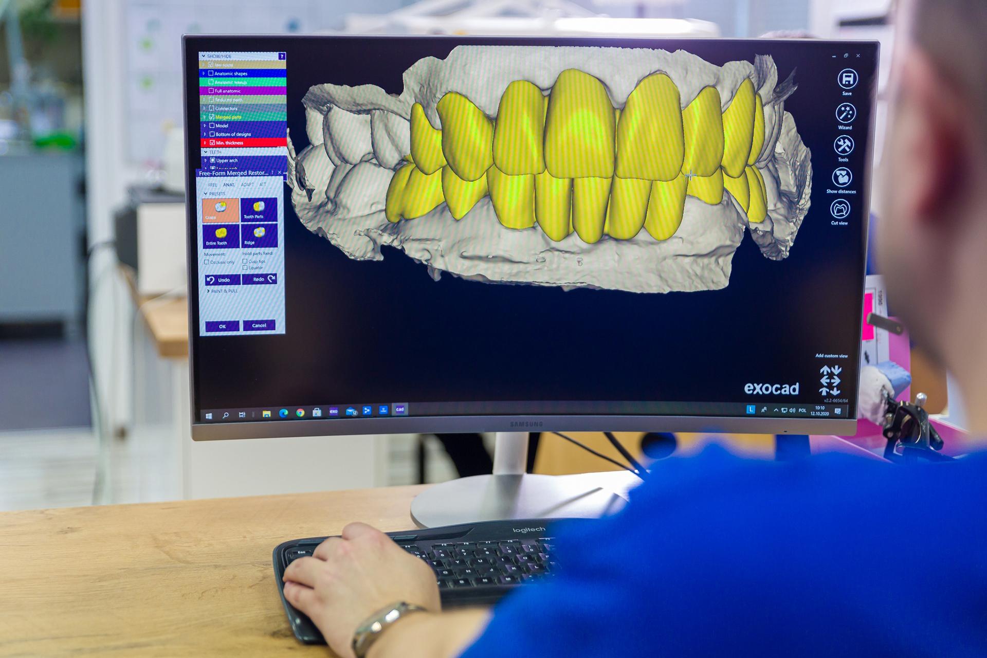 cad-cam-laboratorium-techniki-dentystycznej